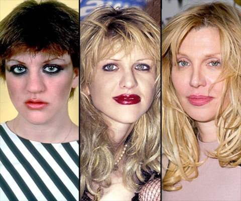 Courtney Love nose job