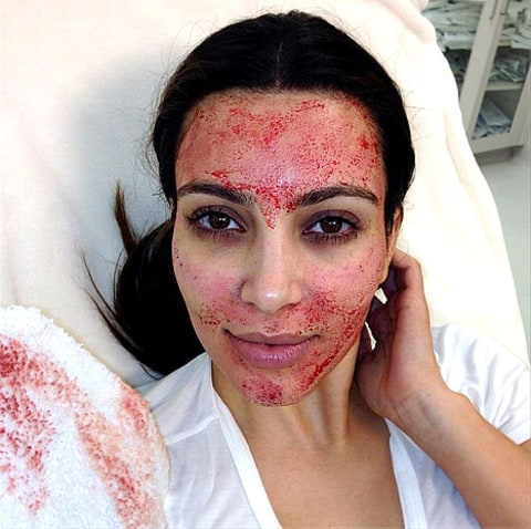 kim blood facial