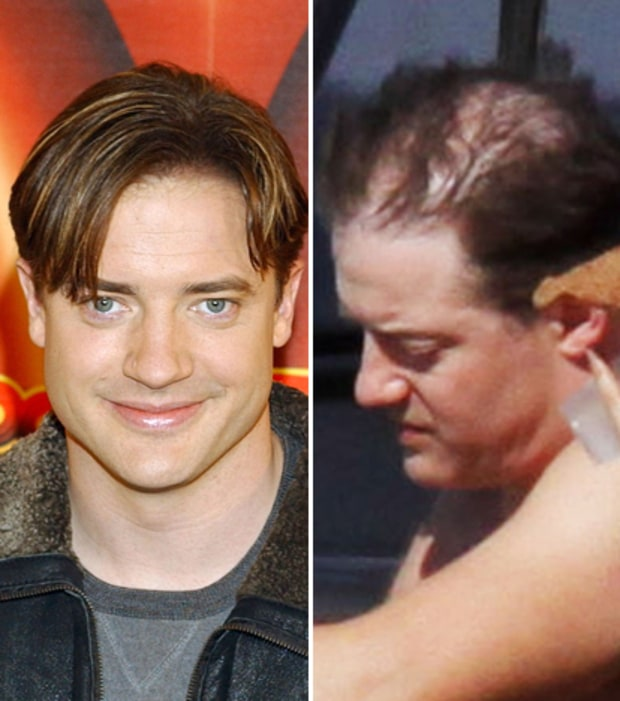 Surprise i 39 m bald surprise i 39 m going bald us weekly - Brendan fraser bald ...