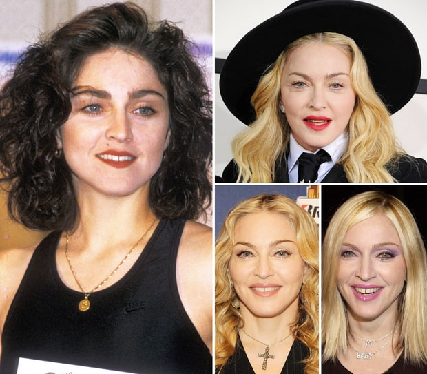 Madonna: How Her Face Has Changed