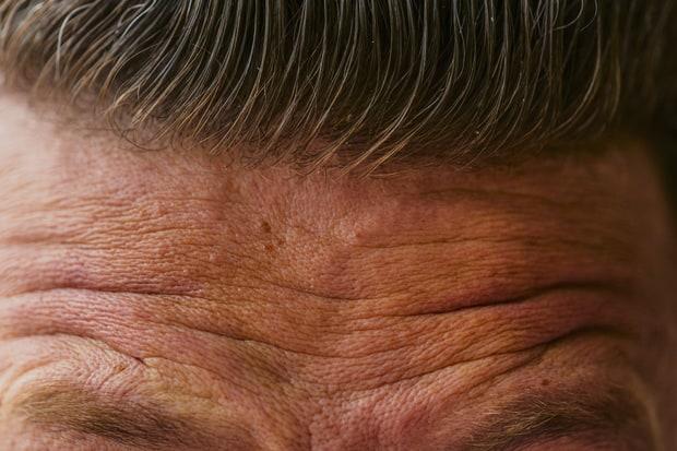 Erase the Wrinkles