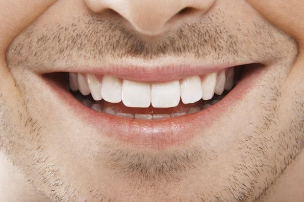 Brighten Your Smile