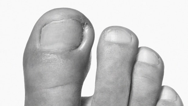 Five Rules for Your Feet
