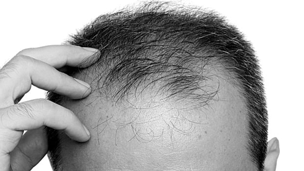 10 Myths and Facts about Hair Loss