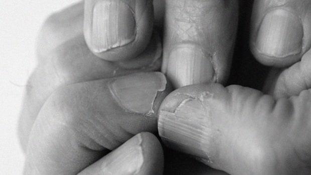 Prevent split nails