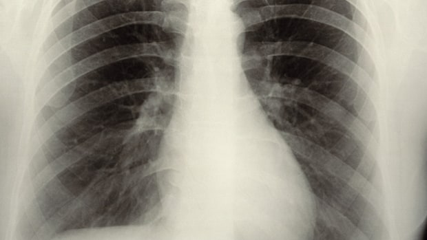 Heart stress tests or chest X-rays before minor surgery