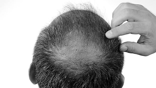 You Can Prevent Hair Loss: Myth