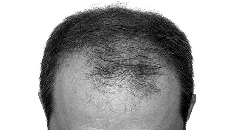 Mistreating Your Hair Can Cause Hair Loss: Fact