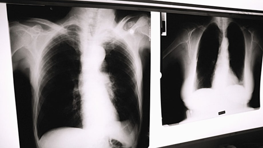 Routine Chest X-Rays Before Out­patient Hospital Procedures