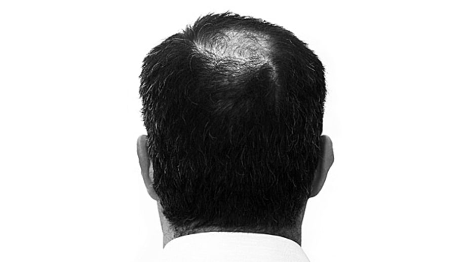 Stress Causes Hair Loss: Mostly Myth