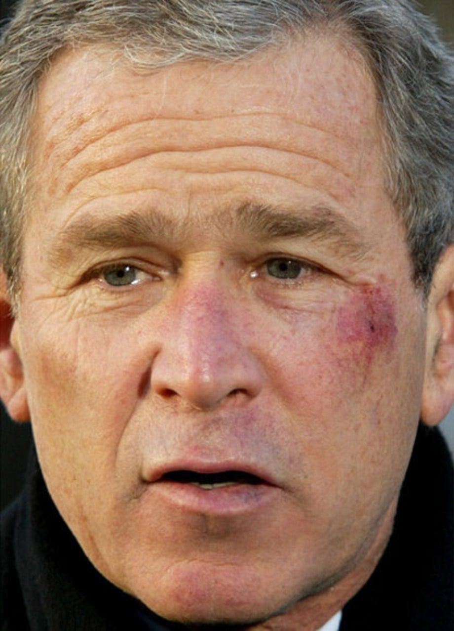 Bush Moments: January 14, 2002: pretzel bruise