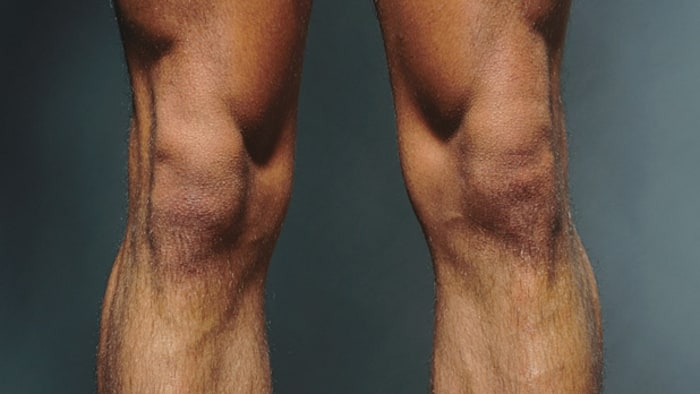 The Way To Build A Better Knee Men S Journal