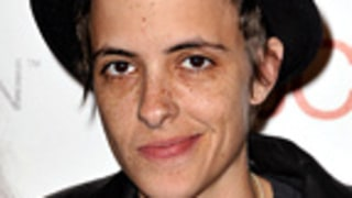 Samantha Ronson Black and Blue After Bike Accident