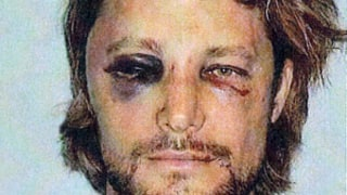 See Gabriel Aubry's Black Eye, Bloody Face After Olivier Martinez Fight