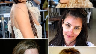 Celebs With Bad Skin