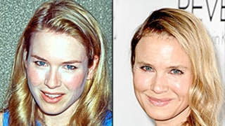 Renee Zellweger Used to Look Like This: See How Her Appearance Has Changed Through the Years