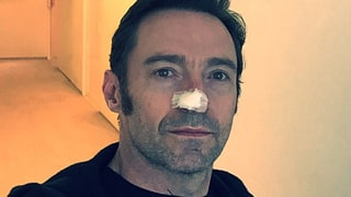 Hugh Jackman Reveals He Was Treated for Skin Cancer for Fifth Time — See His Selfie