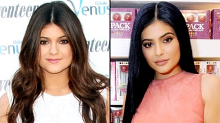 The Evolution of Kylie Jenner — See How Her Face Has Changed in This 30-Second Video!