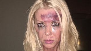 Tara Reid Sparks Concerns After Posting an Instagram Photo of Herself Looking Battered and Bruised: 'This Is What Bullying Looks Like'