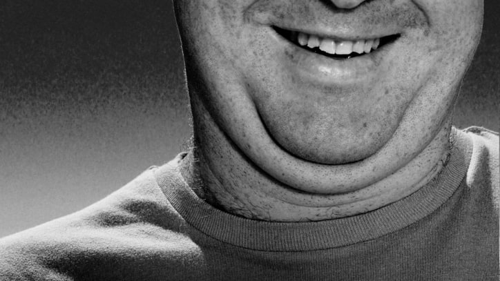 Get Rid of Your Double Chin, Fast