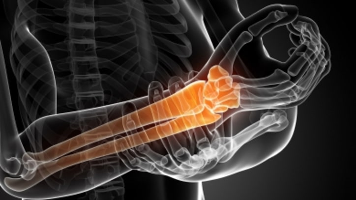Physical Therapy Just as Effective as Surgery for Carpal Tunnel Syndrome