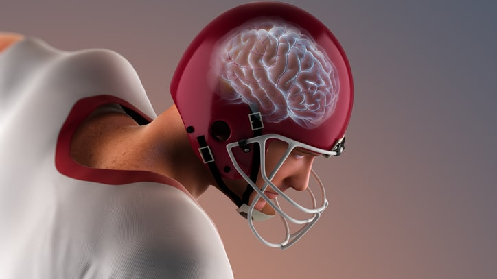 This Is Your Brain on Football