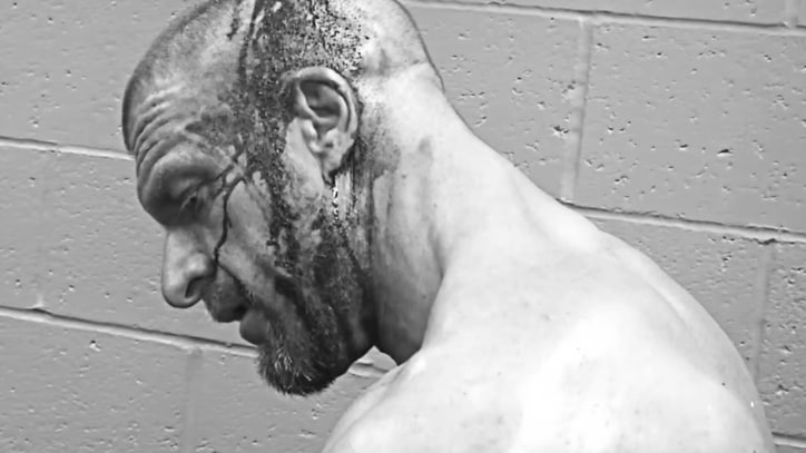 Watch Triple H Get His Gory Head Wound Stapled Shut