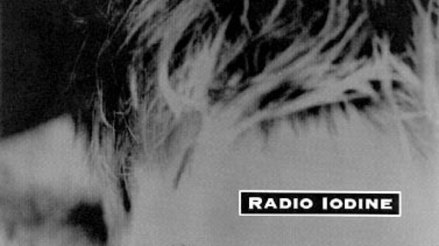 Radio Iodine Photos