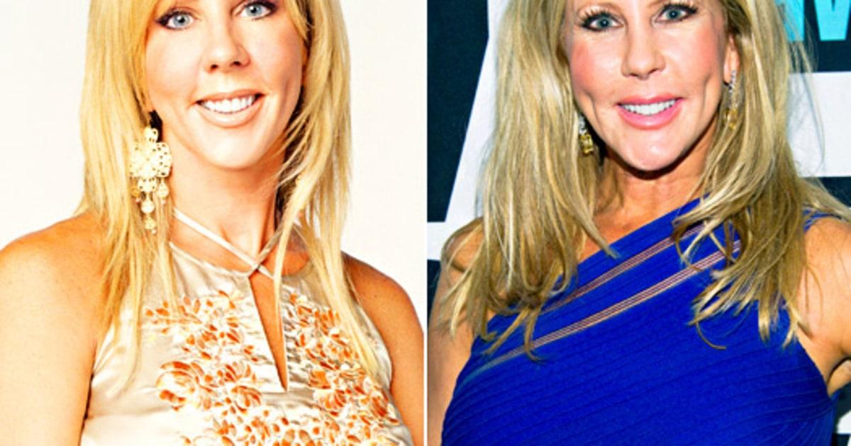 Vicki Gunvalson Real Housewives Plastic Surgery See