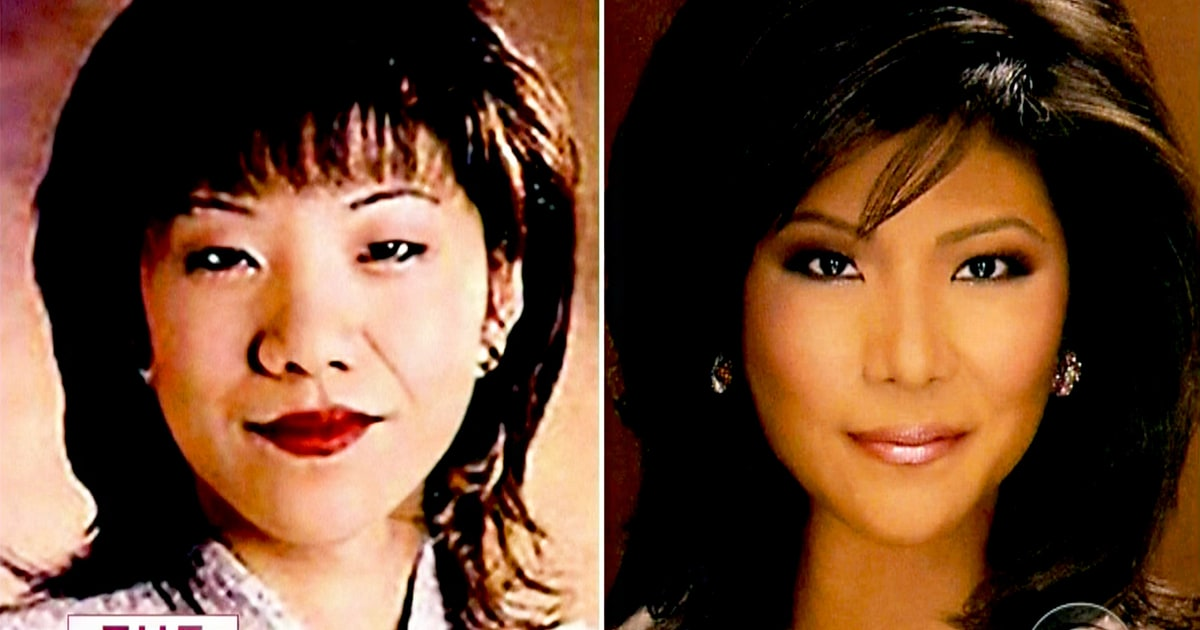 Julie Chen Plastic Surgery Confession Before And After