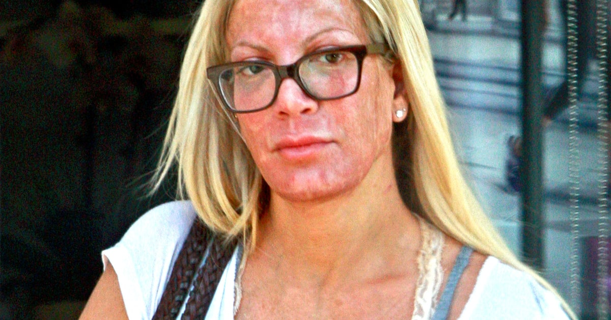 Tori Spelling Leaves Spa With Inflamed Red Face What