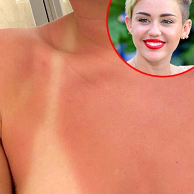 Miley Cyrus Shows Off Bad Sunburn on Chest, Bruise on Butt in Tampa: Pictures
