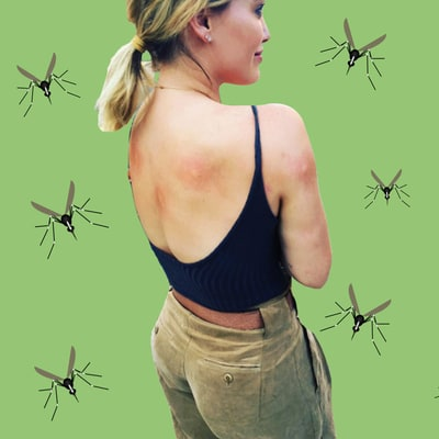 How to Treat (and Prevent!) Mosquito Bites This Summer