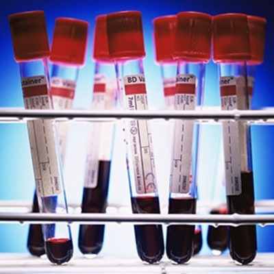 Four Blood and DNA Tests for a Fitter, Stronger You