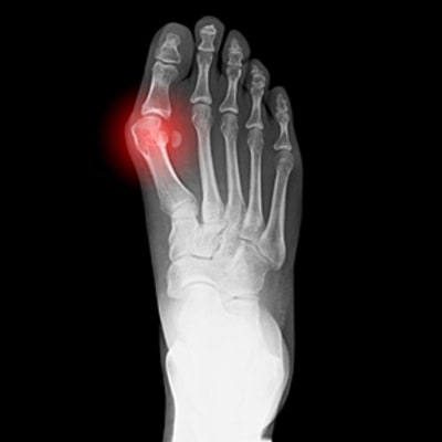 How to Prevent Bunions, and Maybe Even Reverse Them