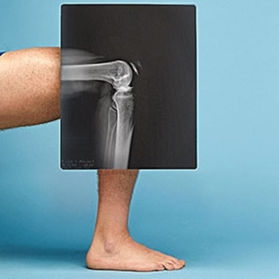Second Opinion: Do I Really Need Knee Surgery?