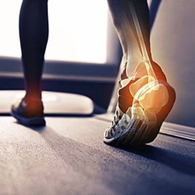 The Real Reason You Have Plantar Fasciitis (and How to Fix It)
