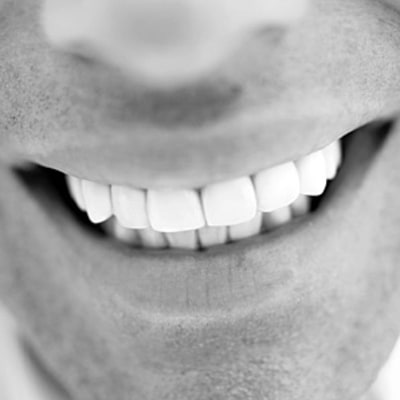 Best Ways to Whiten Teeth