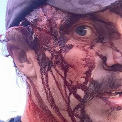 This Man Survived a Worst-Case Bear Attack — Here's How